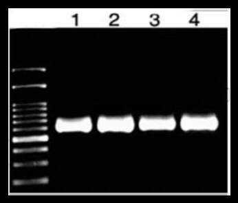 DNA pcr product in gel