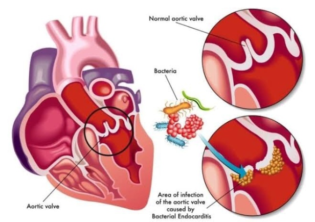 Bacterial or Infective endocarditis, Biofilm